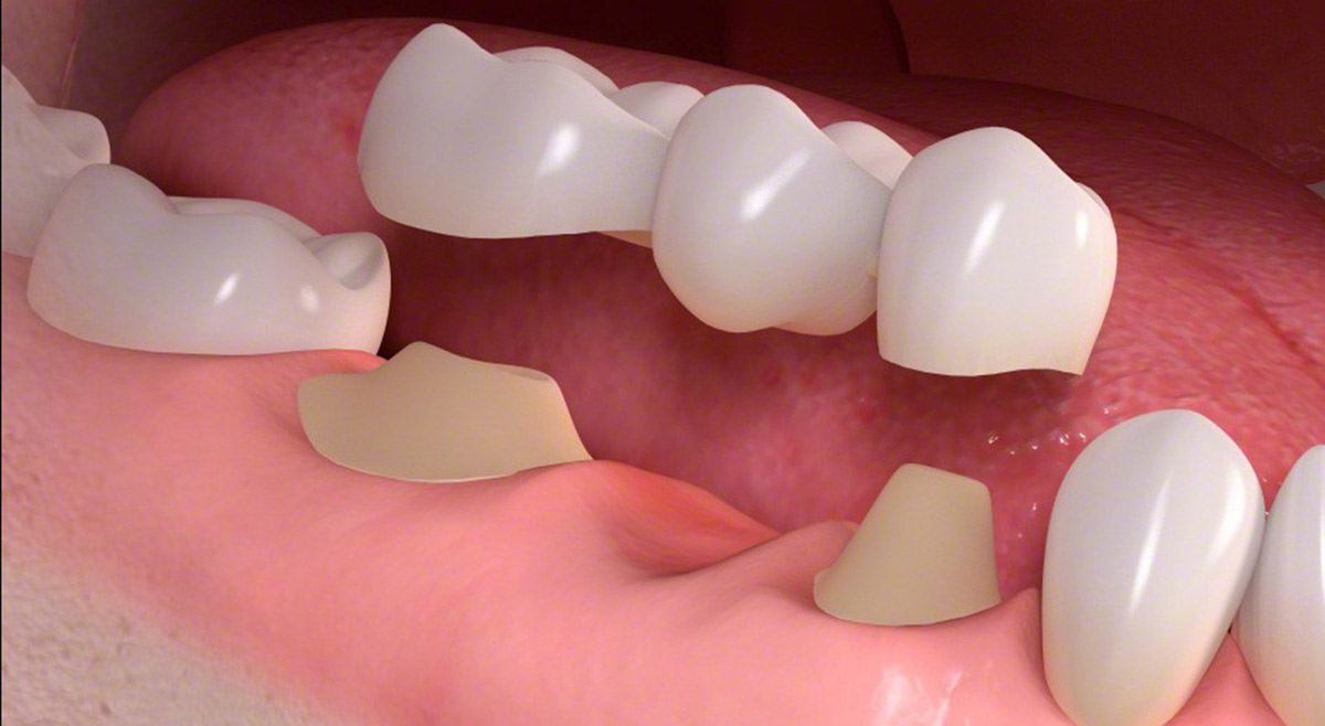 Dental crowns and bridgework at TFI Dentistry Gold Coast
