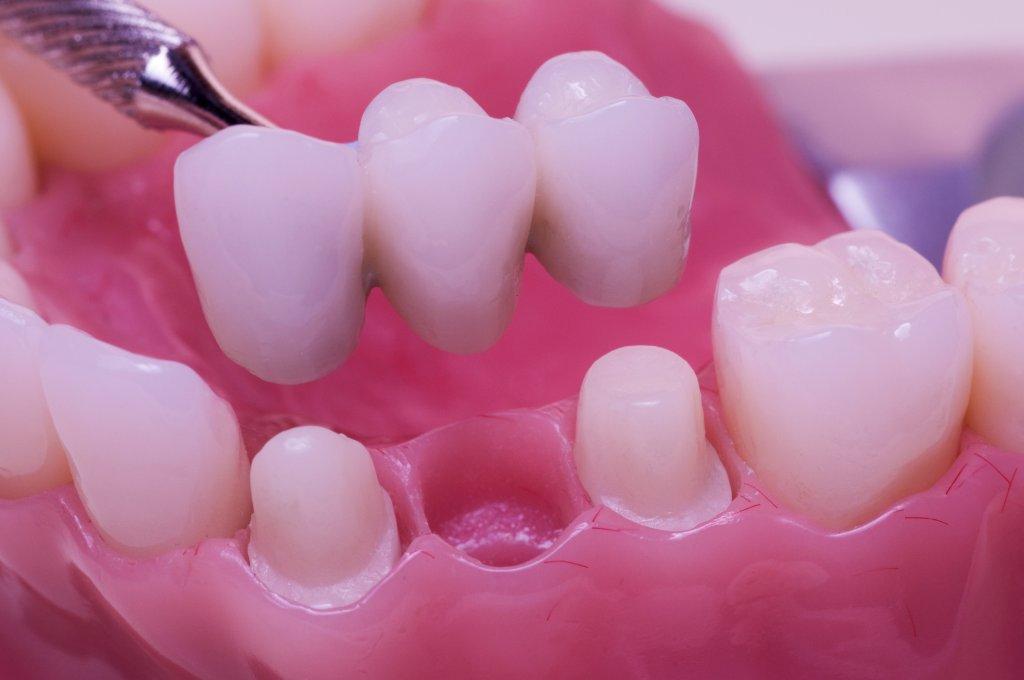 Restorative Dentistry at TFI Dentistry Gold Coast