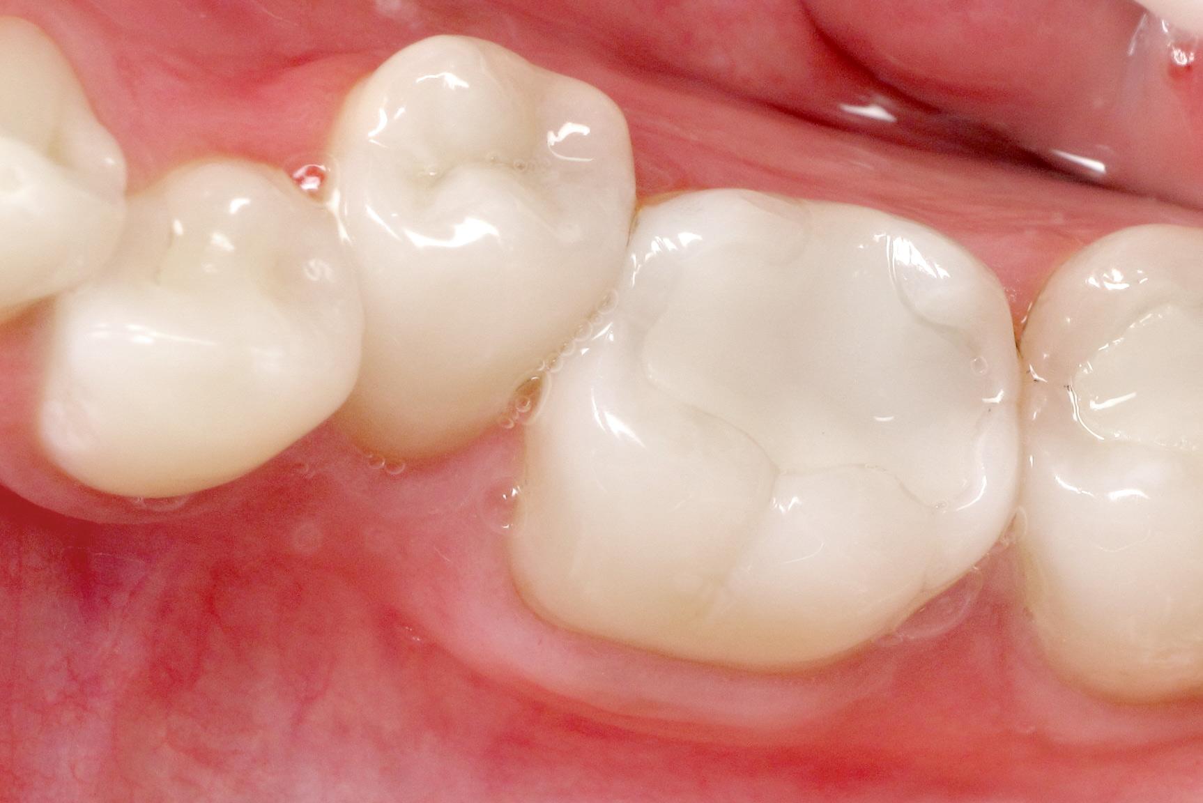 White Fillings at TFI Dentistry Gold Coast