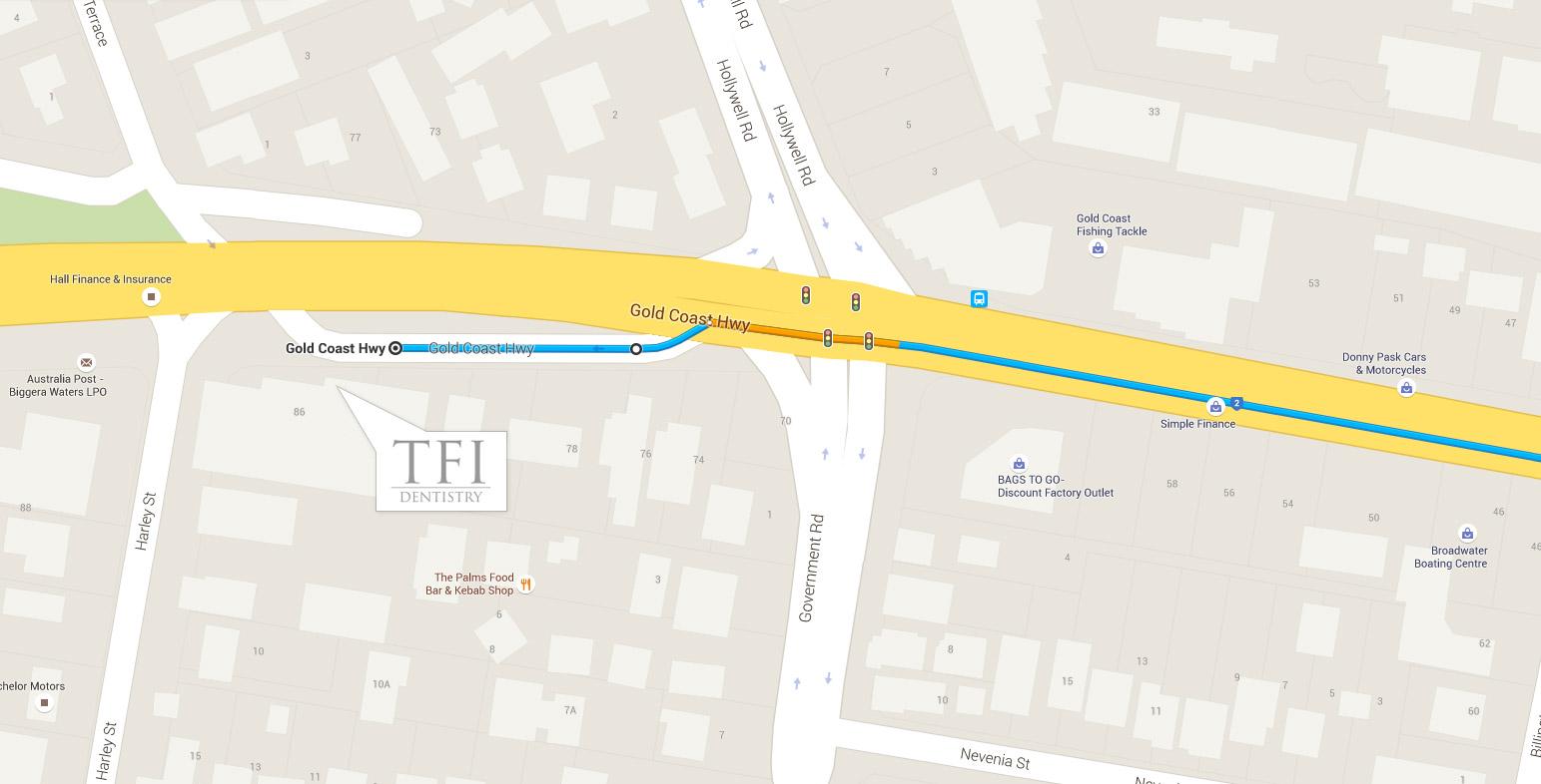 TFI-directions