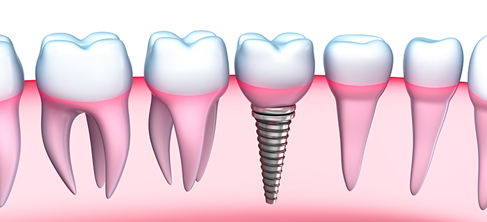dental implants gold coast brisbane