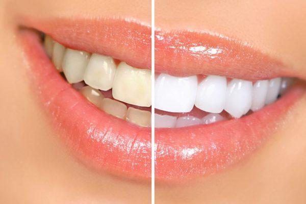 Teeth Whitening | TFI Dentistry