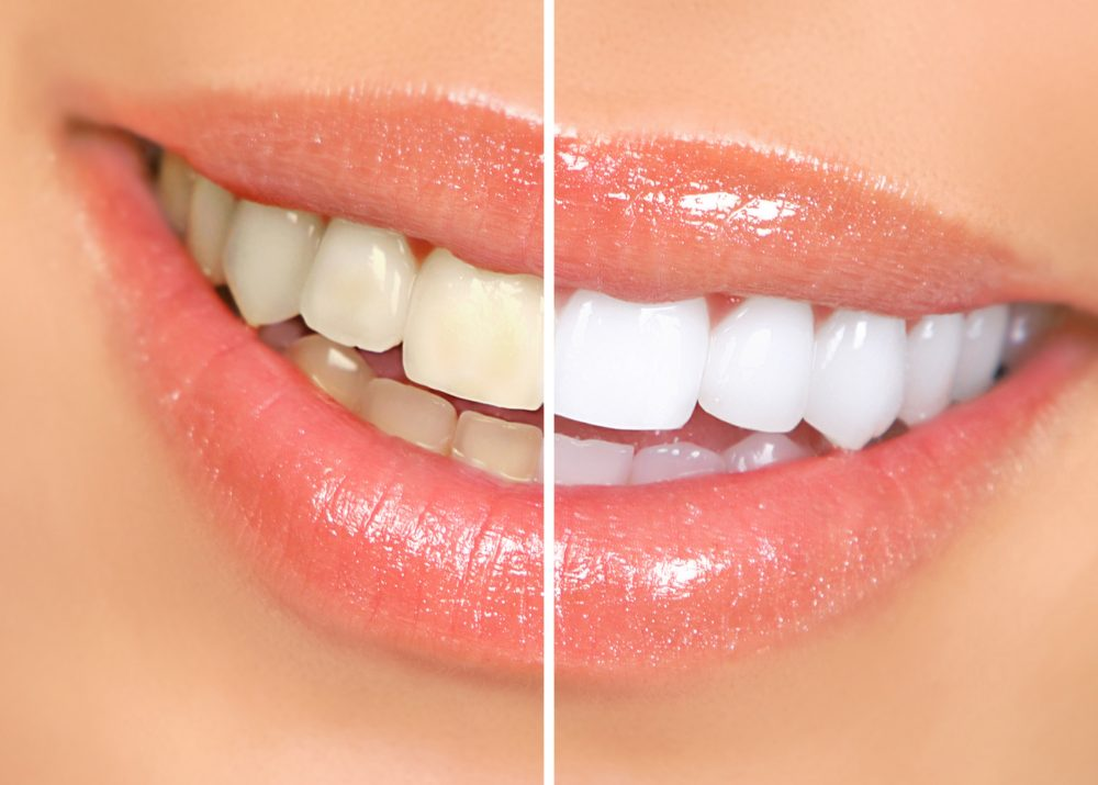 Teeth Whitening | TFI Dentistry