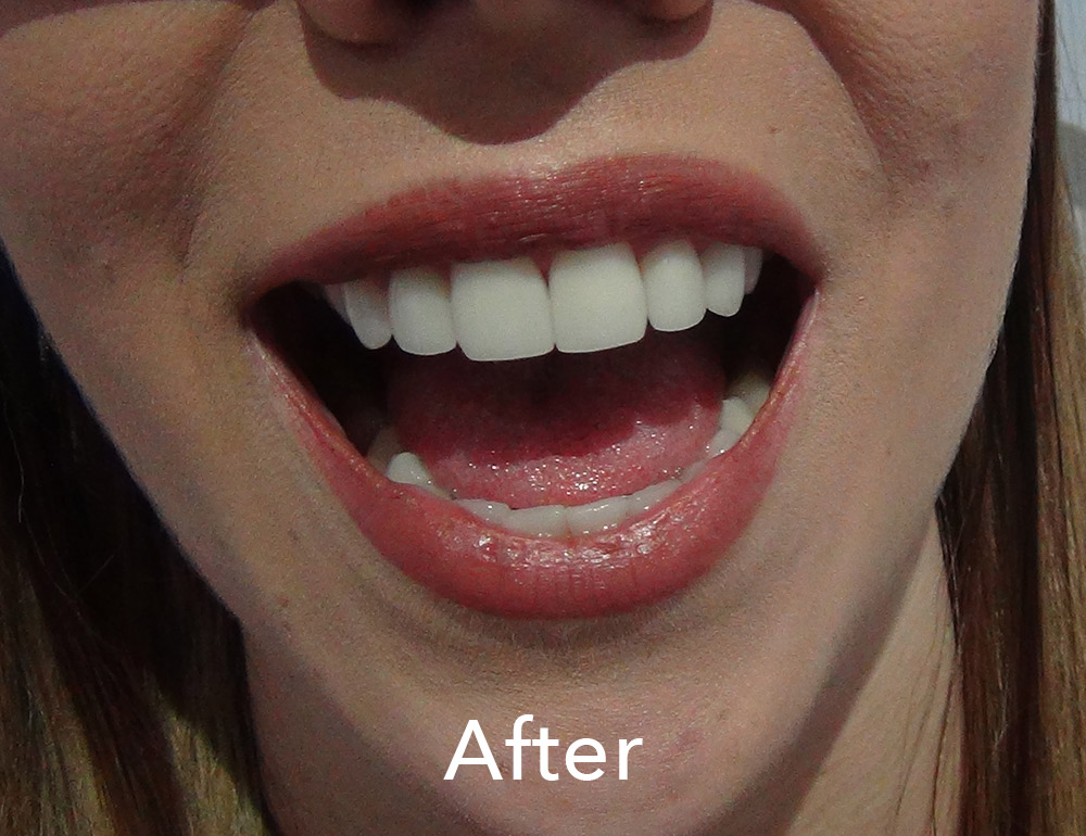 Porcelain veneers Gold Coast